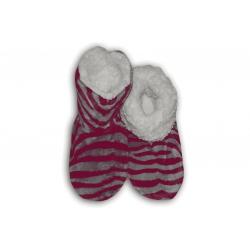 Dámske papuče so vzorom zebry